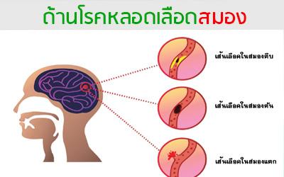 ด้านโรคหลอดเลือดสมอง